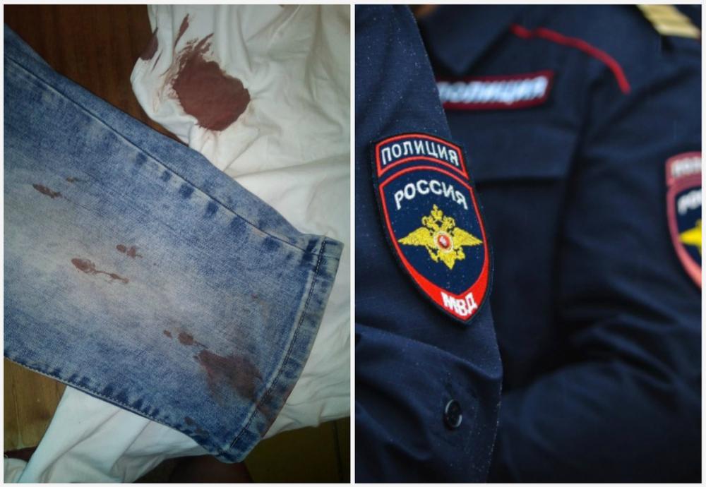 В МВД прокомментировали групповое избиение новороссийца