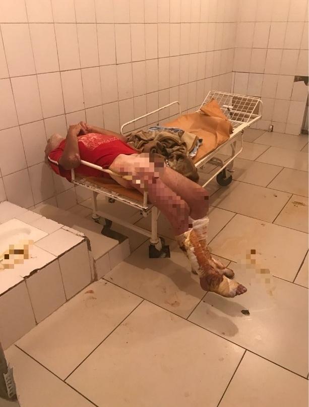 Мужчину без штанов и в язвах обнаружила пациентка в приемном покое новороссийской больницы