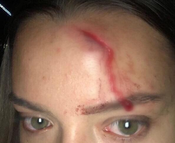 «Ты же знаешь, как решаются армянские дела…» - пострадавшей работнице тира в Анапе угрожают