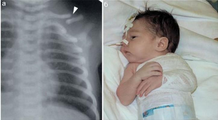 Новорожденному мальчику сломали ключицу в роддоме Крымска, и он все время плачет